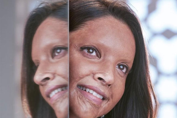 First Look : Deepika Padukone surprises as acid attack survivor